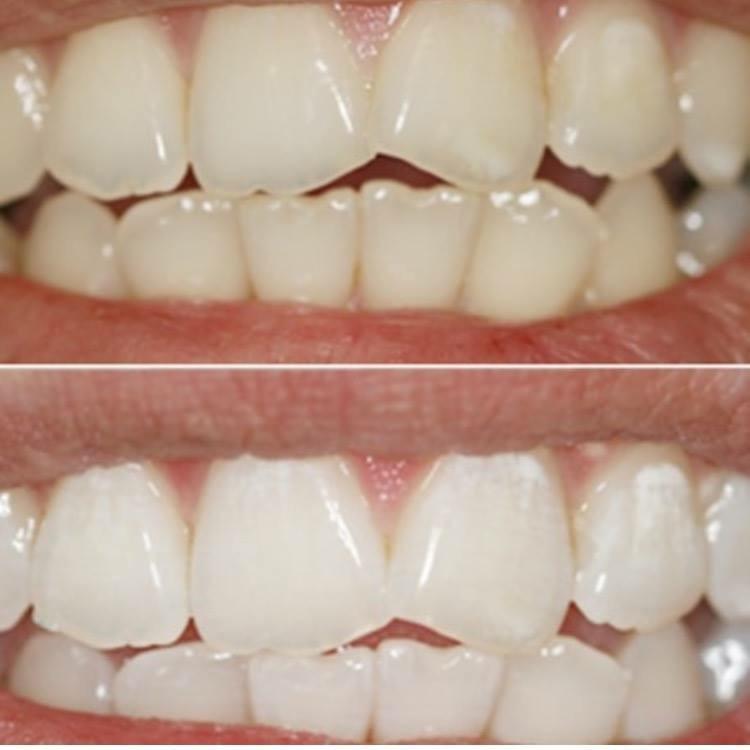 Zahnaufhellung Beispiel